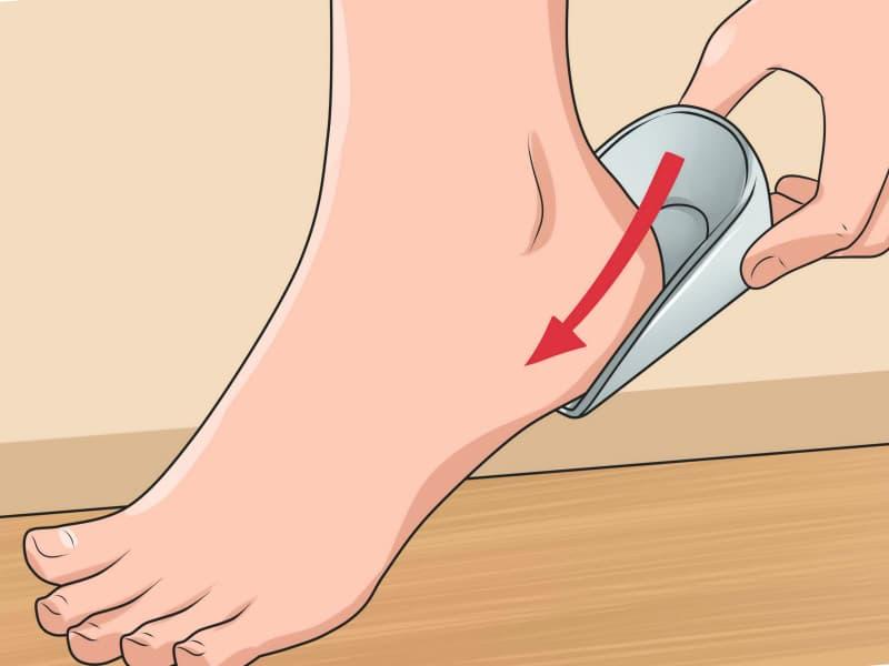 remedios caseros soldier los espolones del pie