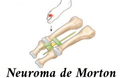 Neurinoma de Morton