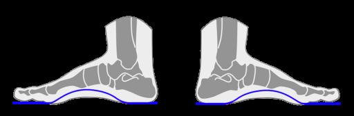 Órtesis o Plantillas Ortopédicas