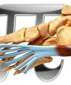 Fascitis Plantar y dolor de fascia
